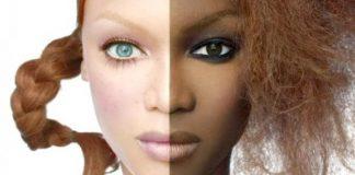 depigmentation de la peau